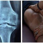 16 geniale tips, der kan hjælpe mod dine knæ smerter.