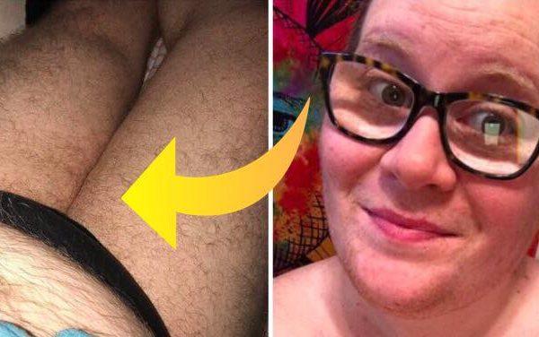 28-åriget kvinde vågnede med kraftige mavesmerter - nu lever hun med usædvanligt meget hår på kroppen