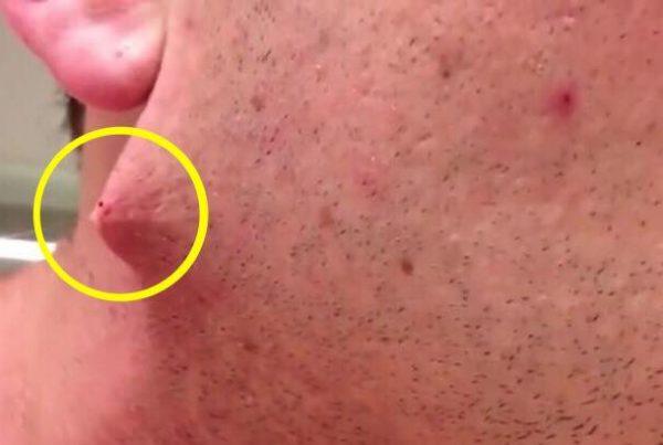 Han barberede sit skæg af for første gang - så opdager han en grusom detalje