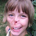 Kæledyr ødelagde pigens ansigt: Gennemgår livsforandrende operation 11 år senere – se det imponerende resultat