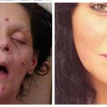 """Melissa advarer nu andre mod at tage stoffer – """"Jeg så sådan her ud i flere år"""""""