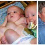 Mor føder sjældne trillinger – 9 måneder senere tror ingen deres egne øjne!