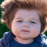 Mor føder baby med gigantisk meget hår – årsagen er chokerende