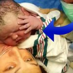Kvinde hører lægen råbe under sit kejsersnit – da hun ser sin baby tror hun ikke sine egne øjne