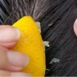 Lider du af hårtab? – prøv denne effektive metode, og du vil stoppe med at fælde