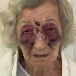 Den 92-årige kvinde blev brutalt slået da hun var ude at køre med taxa – Folk på nettet er gået amok!