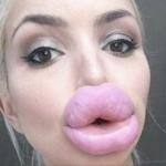 12 kvinder som med sikkerhed fortryder, hvad de har gjort ved deres læber!