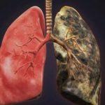 Til dem der ryger/har røget – Denne drik renser giften ud af dine lunger!